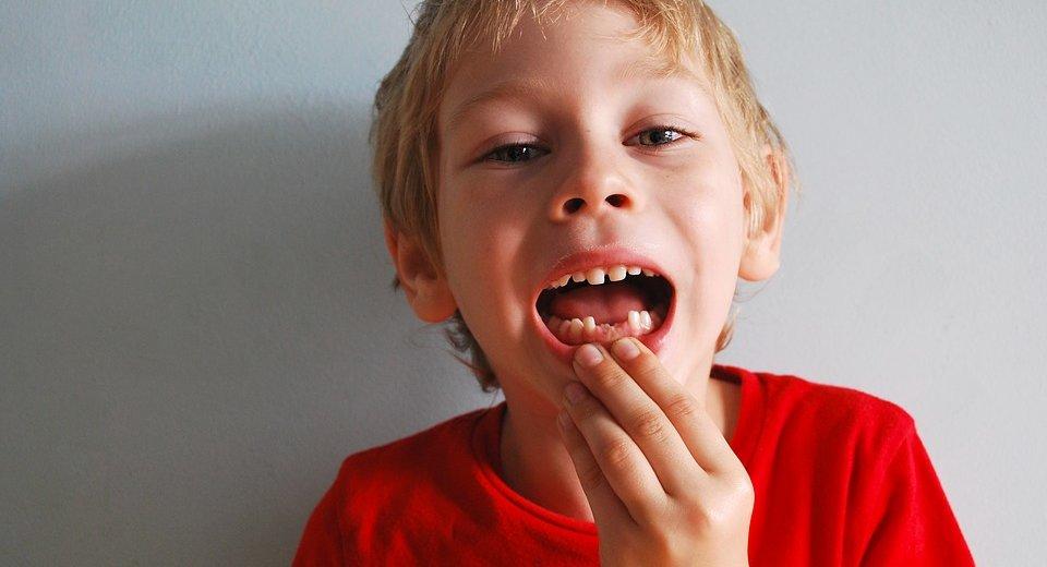 Mliječni zubi vade se ako smetaju izbijanju trajnih ili ako su pokvareni ili bolesni