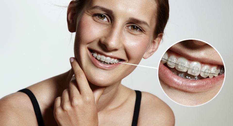 kako prati zube s aparatićem