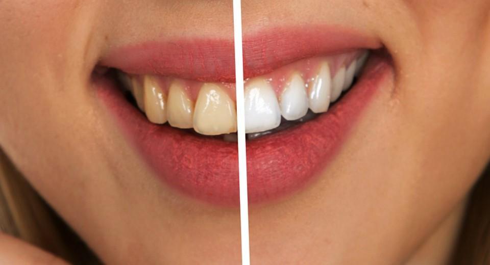 Izbeljivanje zuba kod kuce