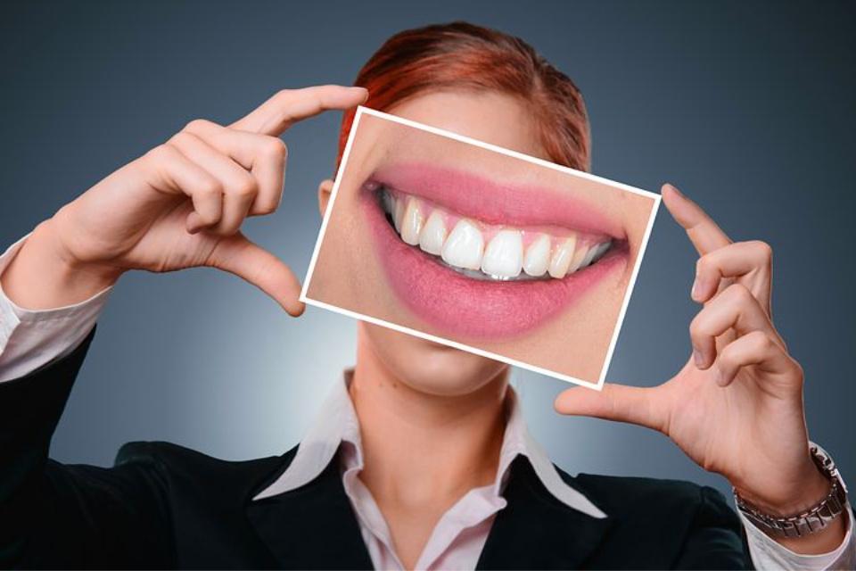 Избјељивање зуба гелом